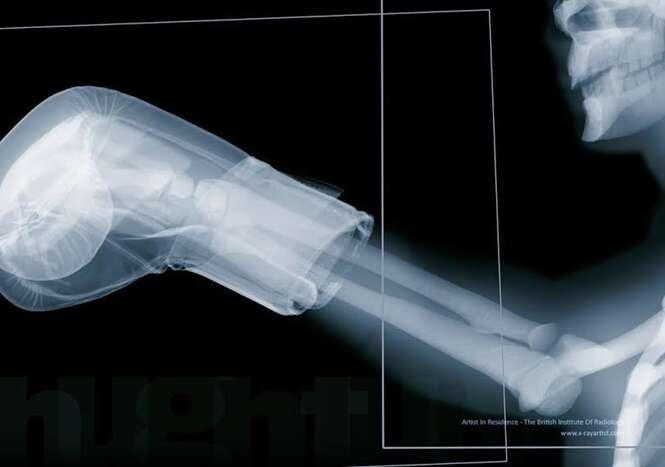 Fotos de raio-X que farão você enxergar o corpo de outra forma