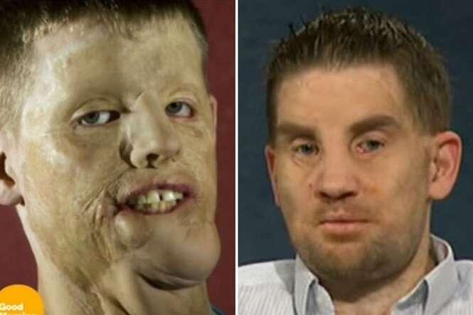 Homem que teve o rosto destruído em acidente passa por transplante facial