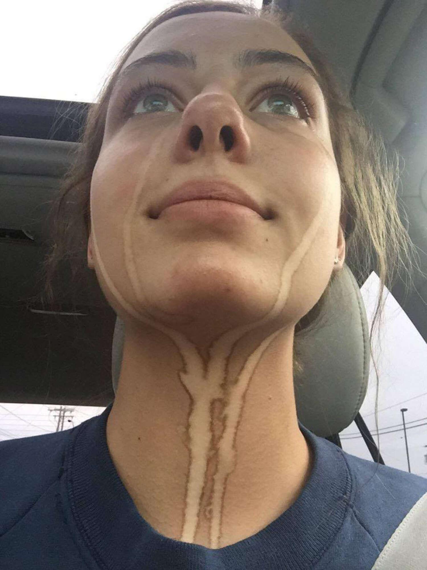 Adolescente fica com marcas de choro no rosto após sessão de bronzeamento artificial