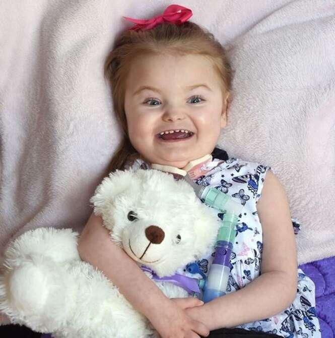 Médicos afirmam que menina com rara condição nunca poderia sorrir