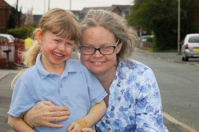 Menina de 5 anos luta contra rara doença de pele