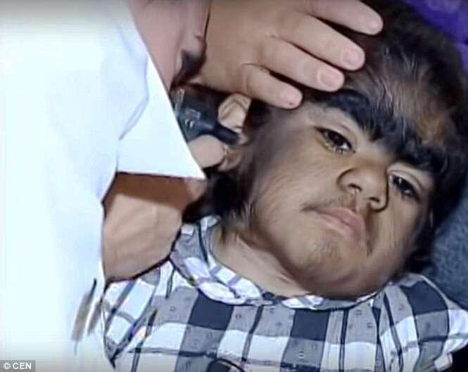 Menina lobisomem busca tratamento após aparelho que removia seus pelos quebrar