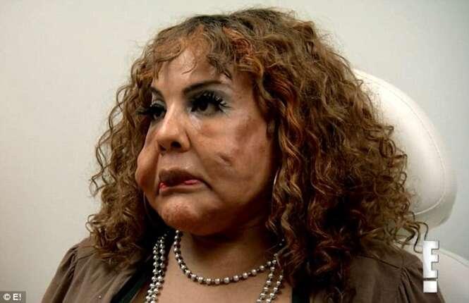 Transgênero que teve cimento injetado no rosto implora ajuda a médicos