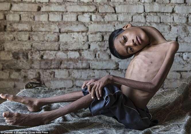 Menino que nasceu com a cabeça em ângulo de 180 graus passa por cirurgia para mudar de vida