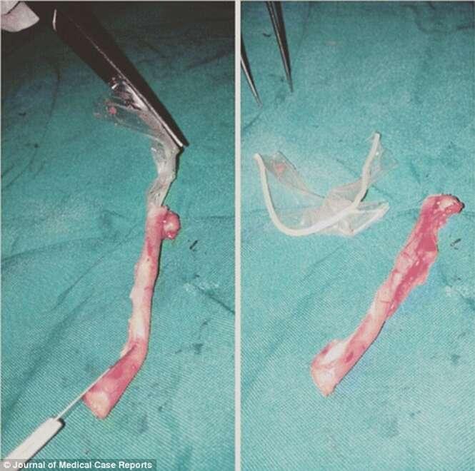 Paciente descobre que ela havia engolido preservativo