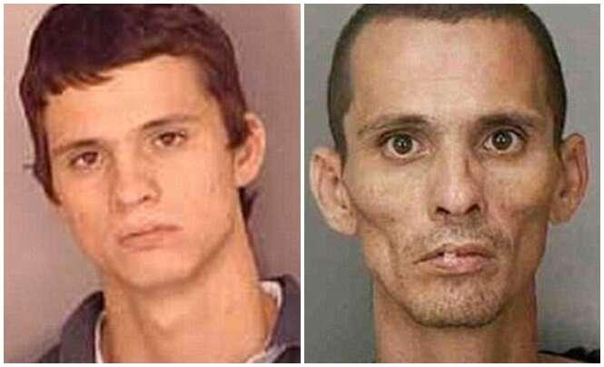 Série de antes e depois mostra poder devastador das drogas