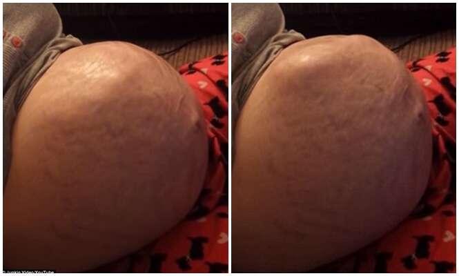 Bebê rola completamente no útero da mãe
