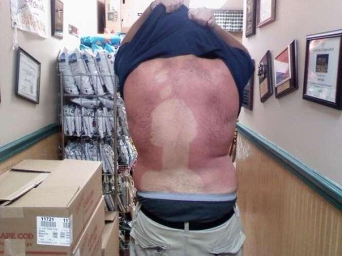 Pessoas que estão sofrendo com as marcas de sol