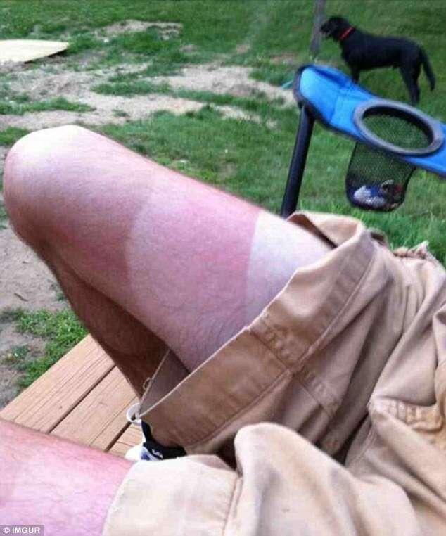 Homem com perna em três tons após tomar sol em dias diferentes viraliza na internet
