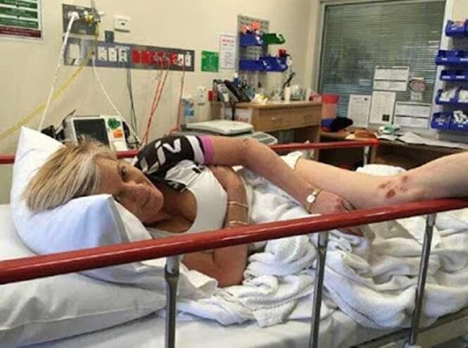 Silicone explode após mulher ser atacada por canguru