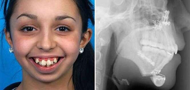 Essa menina passou por uma incrível cirurgia no queixo e teve sua vida transformada