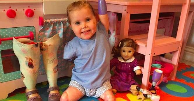 Menina que perdeu seus membros para doença rara ganha adorável boneca parecida com ela