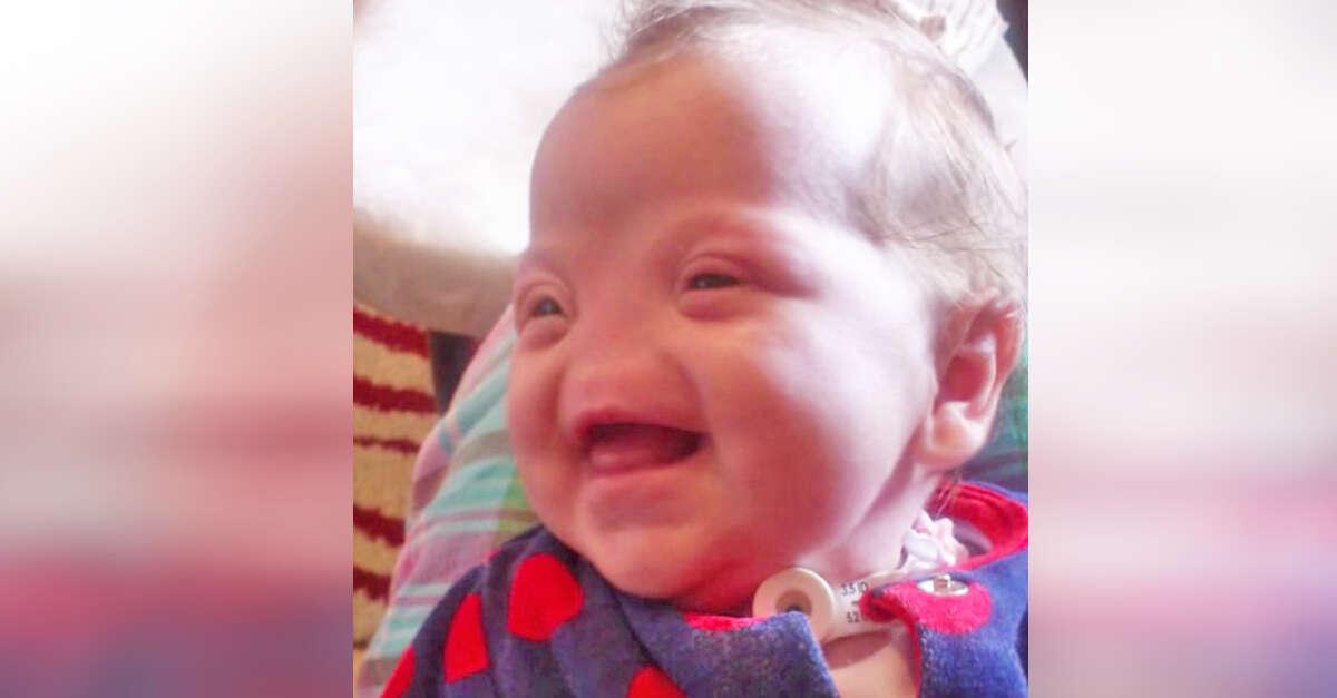 Bebê recém-nascido que veio ao mundo sem nariz é alegria e orgulho de sua mãe