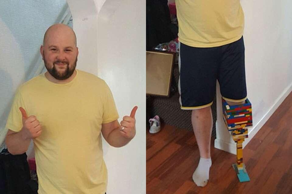Homem cria prótese usando LEGO
