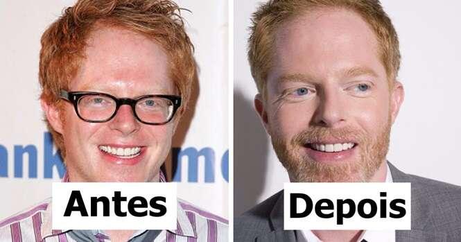 Antes e depois provando que os homens ficam melhores com barba
