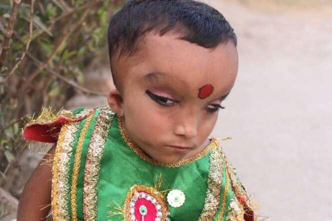 Criança com quadro médico desconhecido é adorado como deus na Índia
