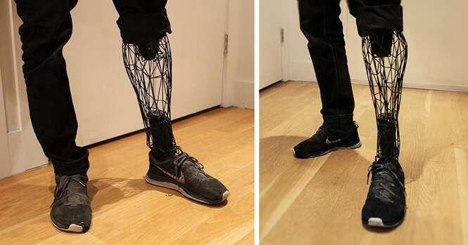 Designer cria prótese mais leve e mais barata que as convencionais usando impressora 3D