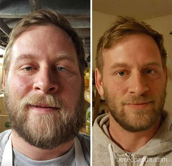 Antes e depois mostrando o que acontece quando você para de ingerir bebidas alcóolicas