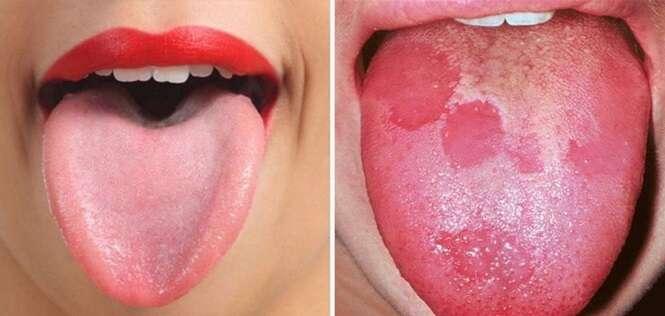 Sinais dados pela nossa língua e que podem dizer bastante sobre a nossa saúde