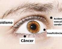 8 coisas que seus olhos estão tentando lhe dizer sobre a sua saúde