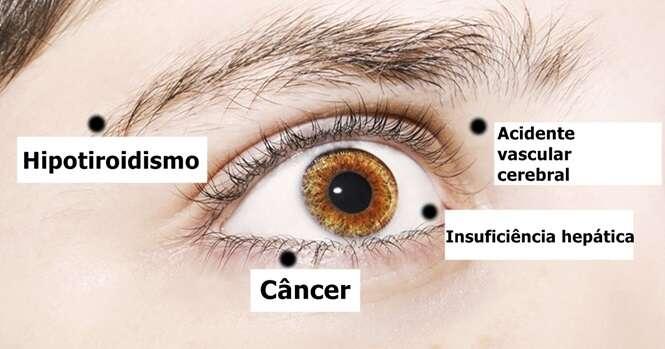 Coisas que seus olhos estão tentando lhe dizer sobre a sua saúde