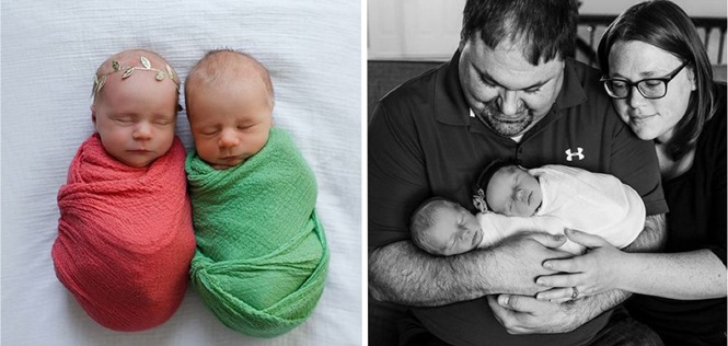 Sabendo que um de seus filhos gêmeos tinha pouco tempo de vida, pais fizeram comovente ensaio fotográfico