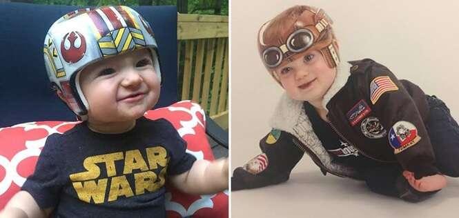 Bebês usando capacetes médicos criativamente decorados por talentosa artista