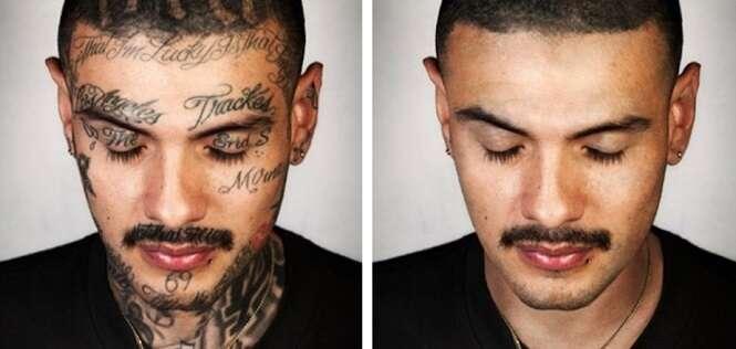 Projeto incrível remove tatuagens de ex-integrantes de gangues