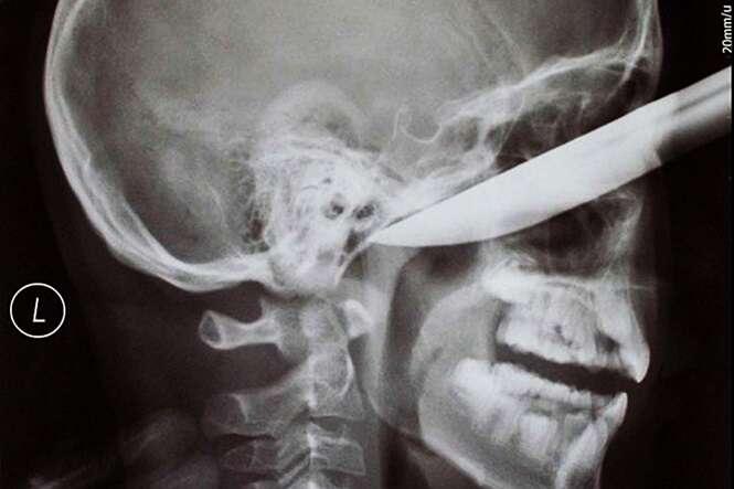 Objetos inacreditavelmente encontrados em raios-X