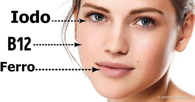 Sinais de falta de vitaminas que estão literalmente na cara