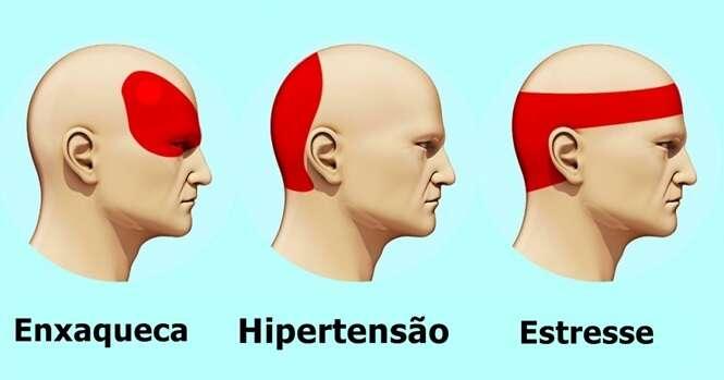 Saiba como se livrar da dor de cabeça em 5 minutos e sem precisar de remédios