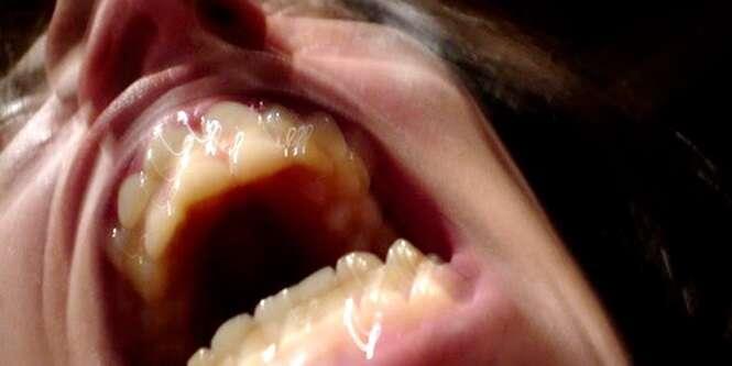 Provas de que ir ao dentista no passado era algo que realmente dava medo