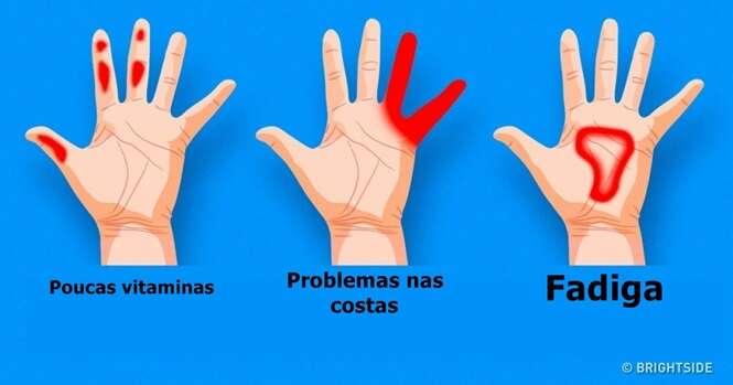 Coisas importantes que suas mãos estão tentando lhe dizer sobre a sua saúde