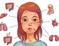 6 problemas dentro de você revelados através de erupções na pele