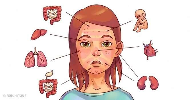 Problemas dentro de você revelados através de erupções na pele