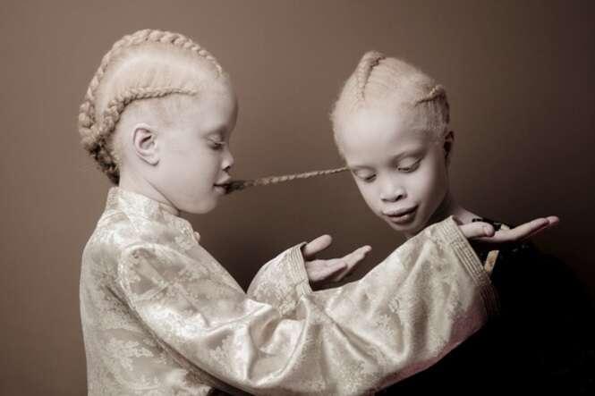 A aparência única destas gêmeas está enlouquecendo a internet