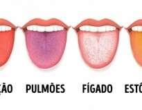 12 problemas de saúde que a cor da nossa língua revela