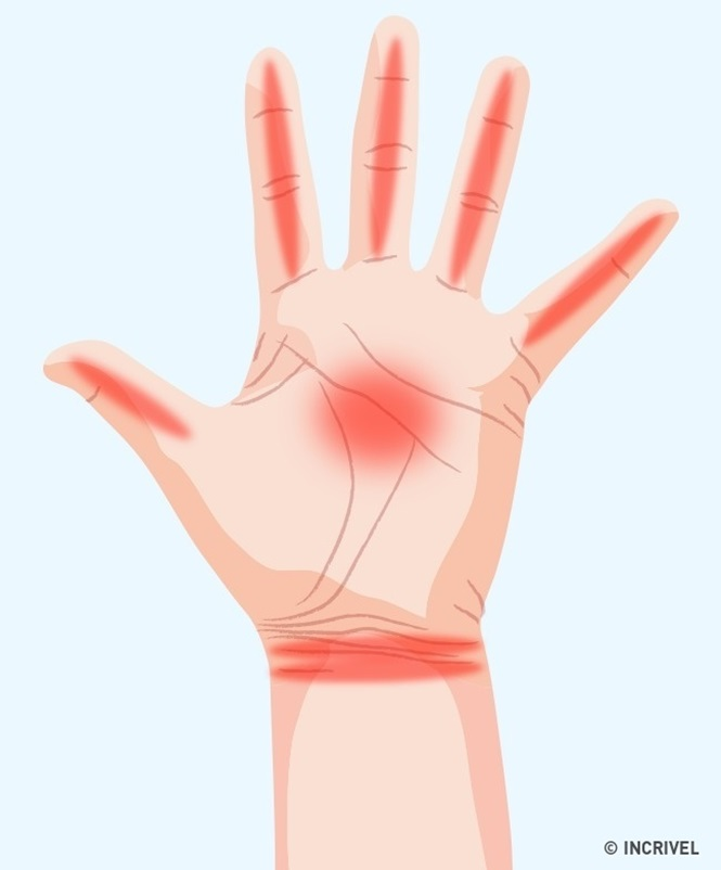 Coisas sobre a nossa saúde que o formigamento nas mãos pode revelar