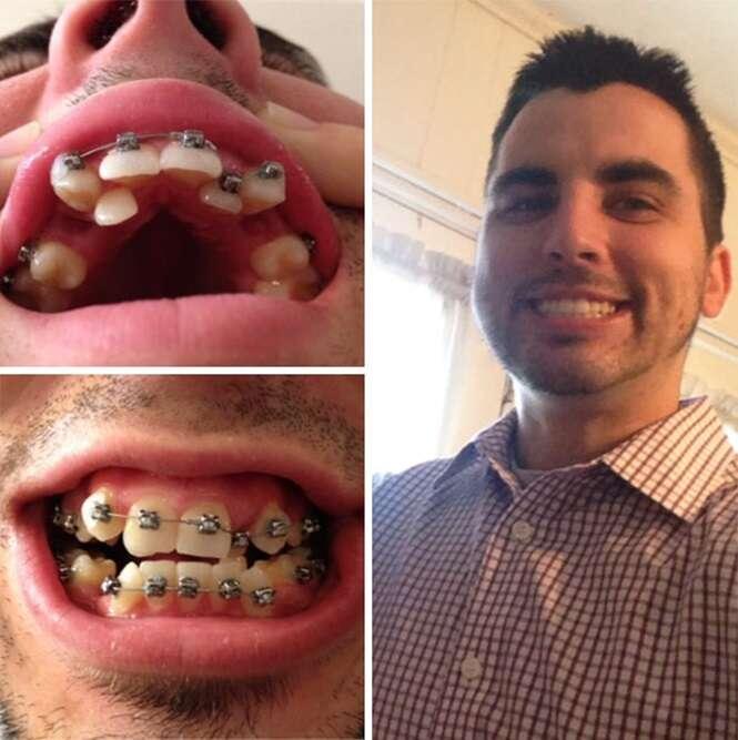 Transformações quase inacreditáveis de pessoas que tinham dentes fora do lugar