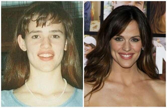 Fotos de celebridades que provam que você não deve zombar de nerds na escola