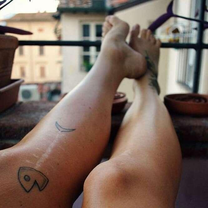 Tatuagens sensacionais que transformaram cicatrizes em verdadeiras obras de arte