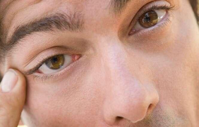 Por que às vezes a pálpebra do olho treme? Fique atento aos sinais que seu corpo envia a você