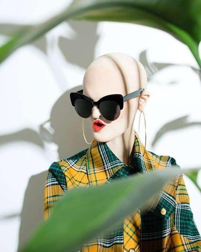 Modelo que possui síndrome genética rara quebra estereótipos no mundo da moda