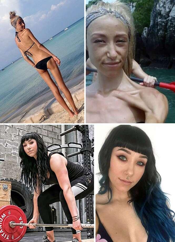 Antes e depois de pessoas que venceram a anorexia