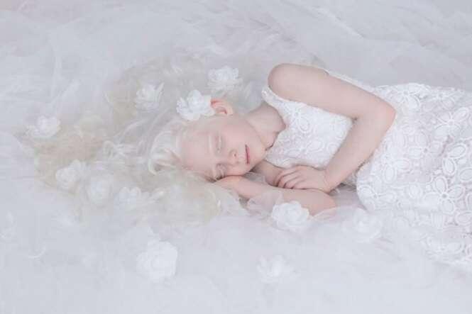 Fotos que mostram a beleza cativante de pessoas albinas