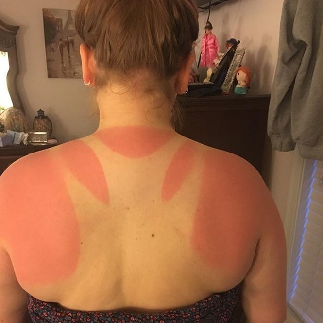 Pessoas que se esqueceram do protetor solar e se deram mal