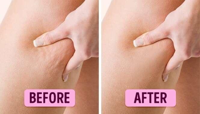 Um remédio caseiro eficaz para embelezar a pele e os cabelos