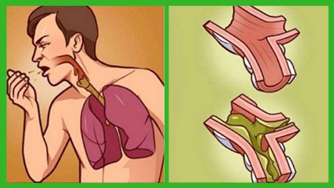 Saiba como acabar rapidamente com todo o catarro da garganta e pulmões