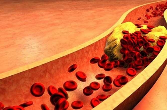 Dicas que vão te ajudar a diminuir o colesterol ruim