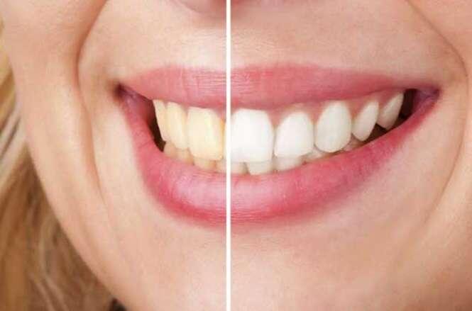 Conheça um incrível tratamento natural para clarear dentes amarelos em apenas 3 minutos